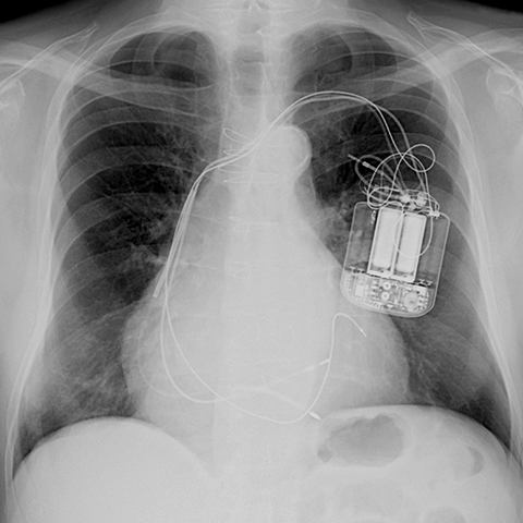 PA Chest Radiograph of Biventricular Pacemaker [1 of 3]
